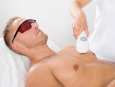 Laser Hair Removal Treatment Areas